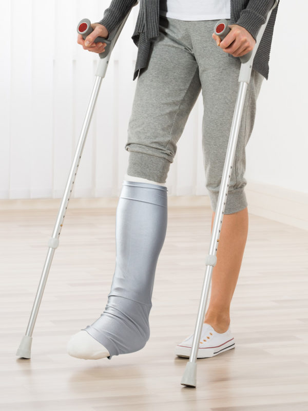 A woman on crutches wearing a grey LimbO Leg Cast Sleeve over the plaster cast on her right leg