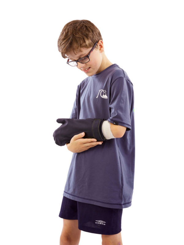 Young boy standing up and wearing an Outcast Child's Arm Cast Weatherproof Protector on his left arm, covering a cast or dressing.