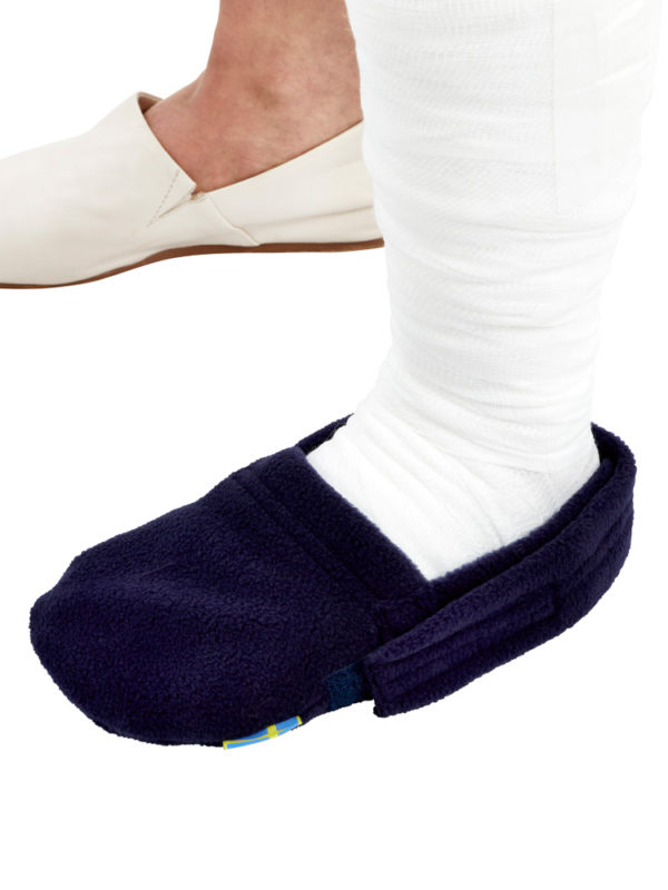 A close up of the blue LimbO Toe Cozy being worn on a plaster cast