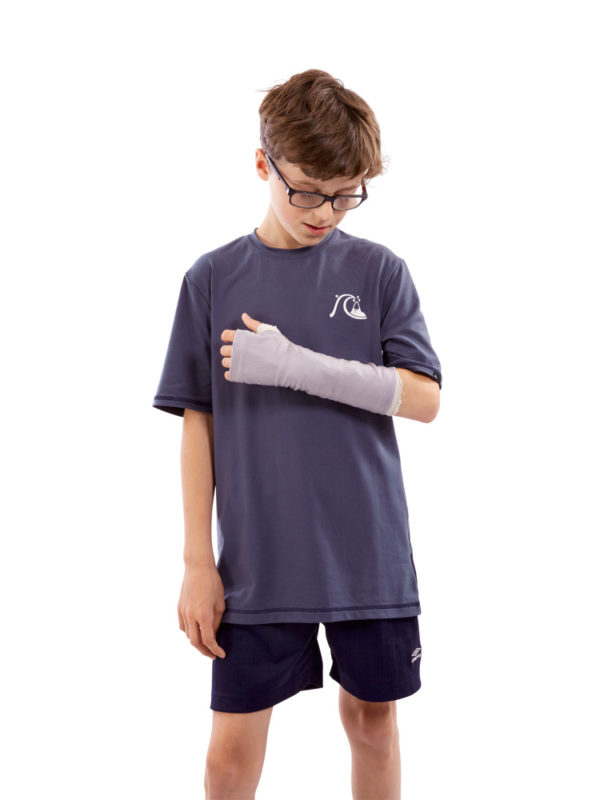 A young boy standing up, wearing a grey coloured LimbO Arm Cast Sleeve over the plaster cast on his left arm